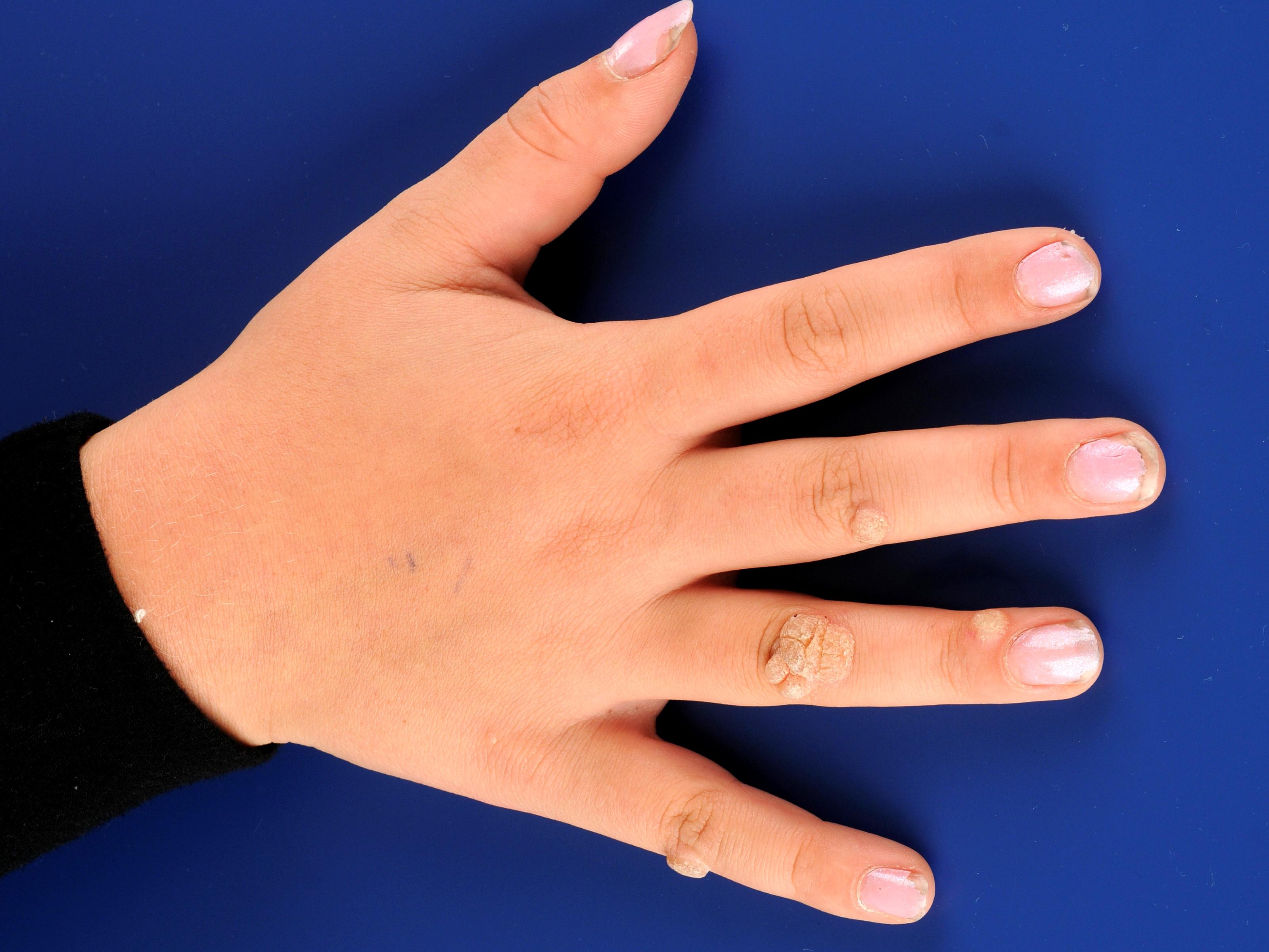 HPV și hiperplazie endometrială icd-9 - Squamous cell papilloma and verruca vulgaris