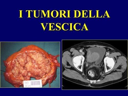 Tumore papilloma vescicale. Papilloma e un tumore. Hpv gardasil injection