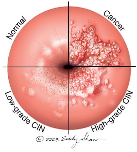 papilloma of the colon)
