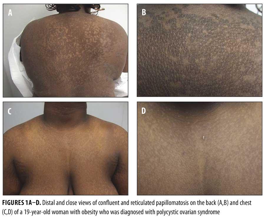 papillomatosis skin causes)