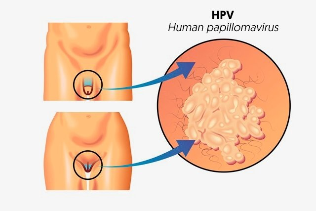 hpv virus and discharge)