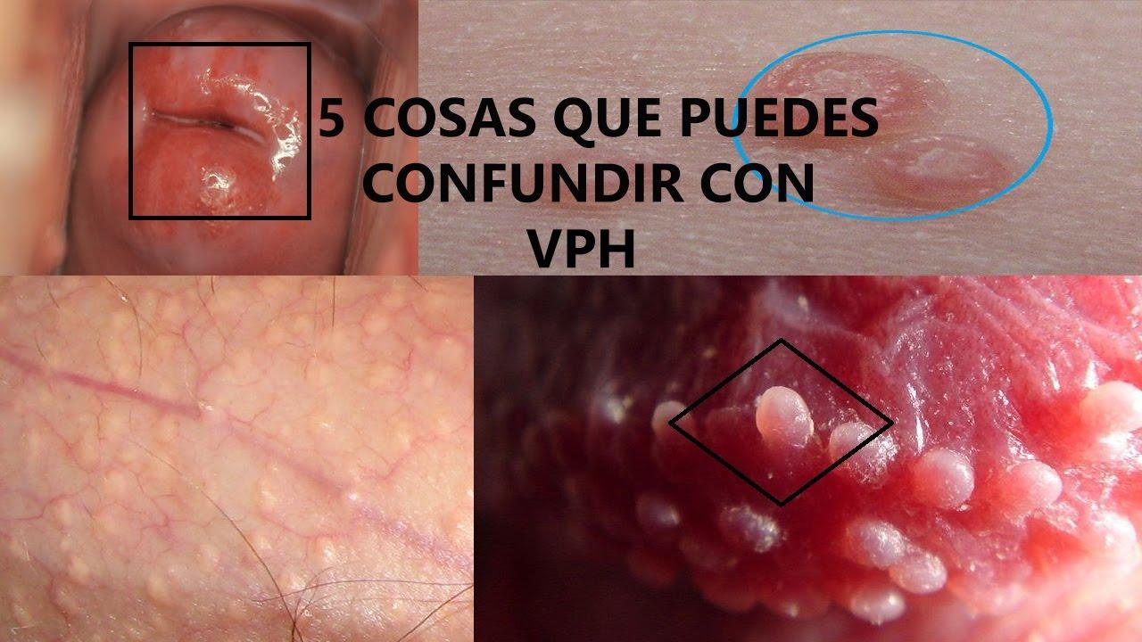 Displasia Cervical, Virus del papiloma humano verrugas en el ano, Virus de papiloma en ano