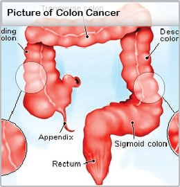 cancer colorectal manifestations