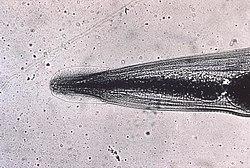 Constipație pinworms