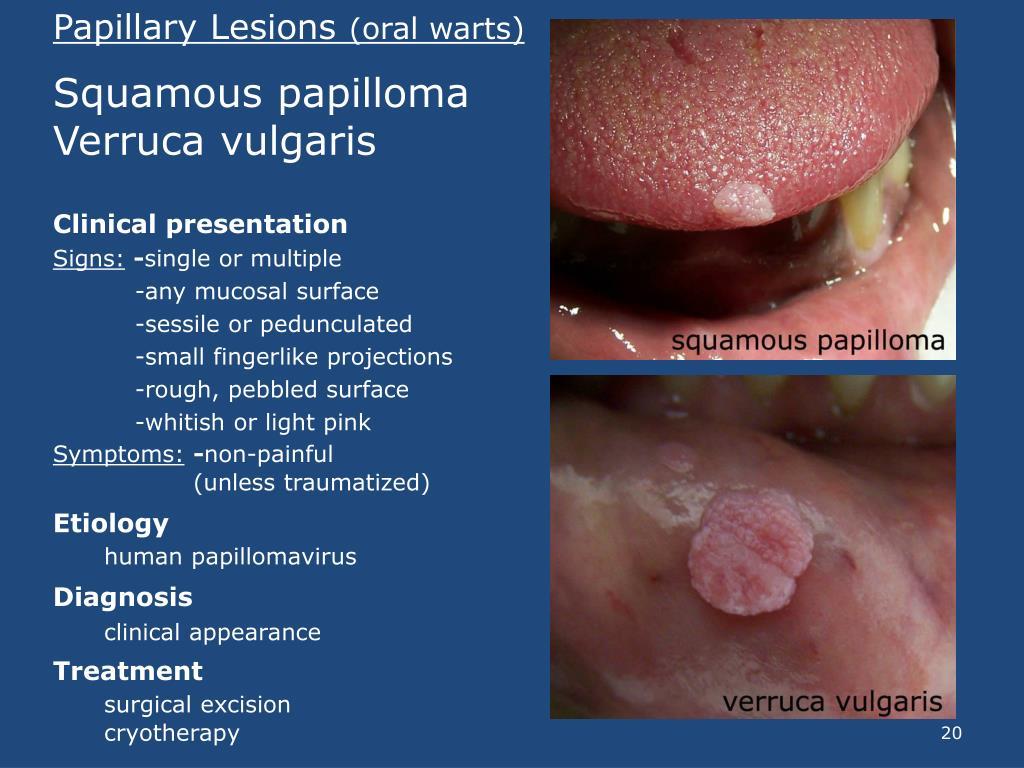 squamous papilloma verruca vulgaris