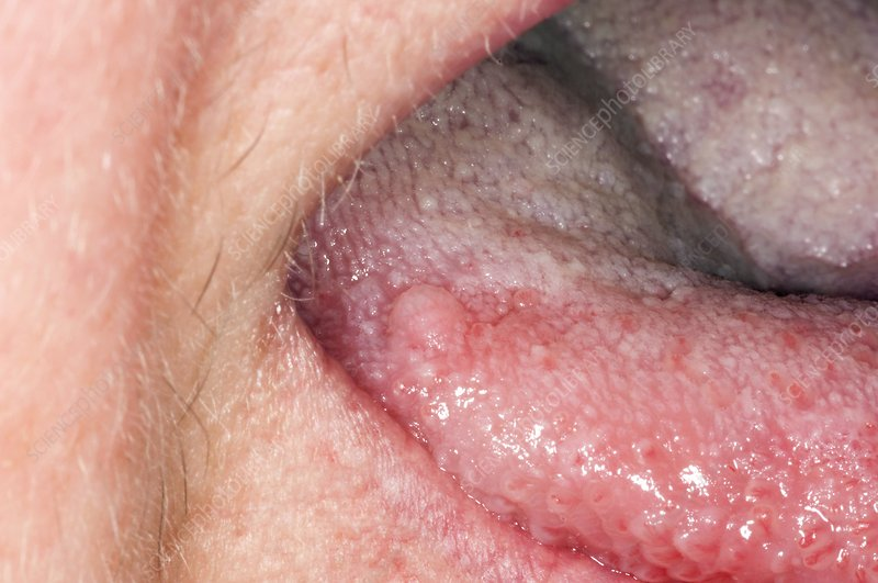 tongue papilloma)