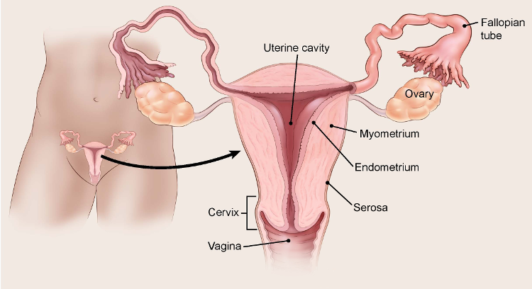 Endometrial cancer in metastatic Reason for hpv vaccine