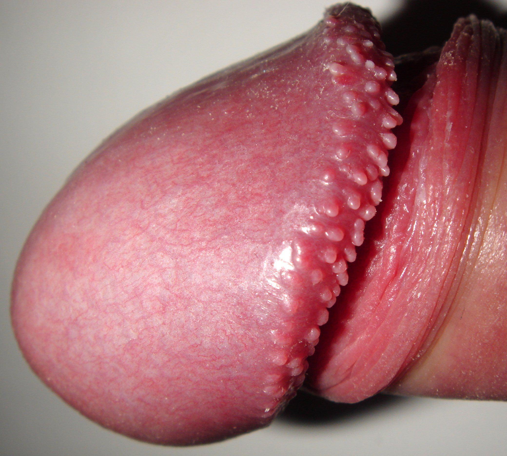 Vestibular papillomatosis treatment Vestibular papillomatosis remedy