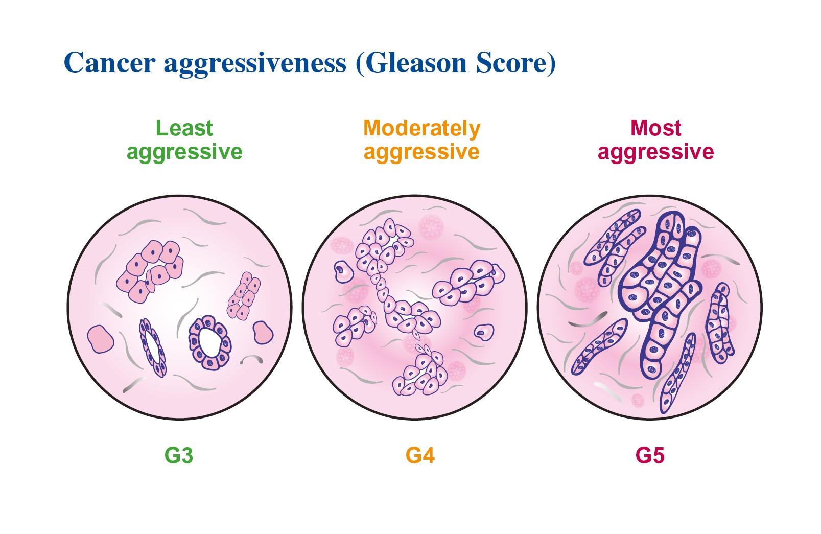 Diagnosticarea cancerului de prostată