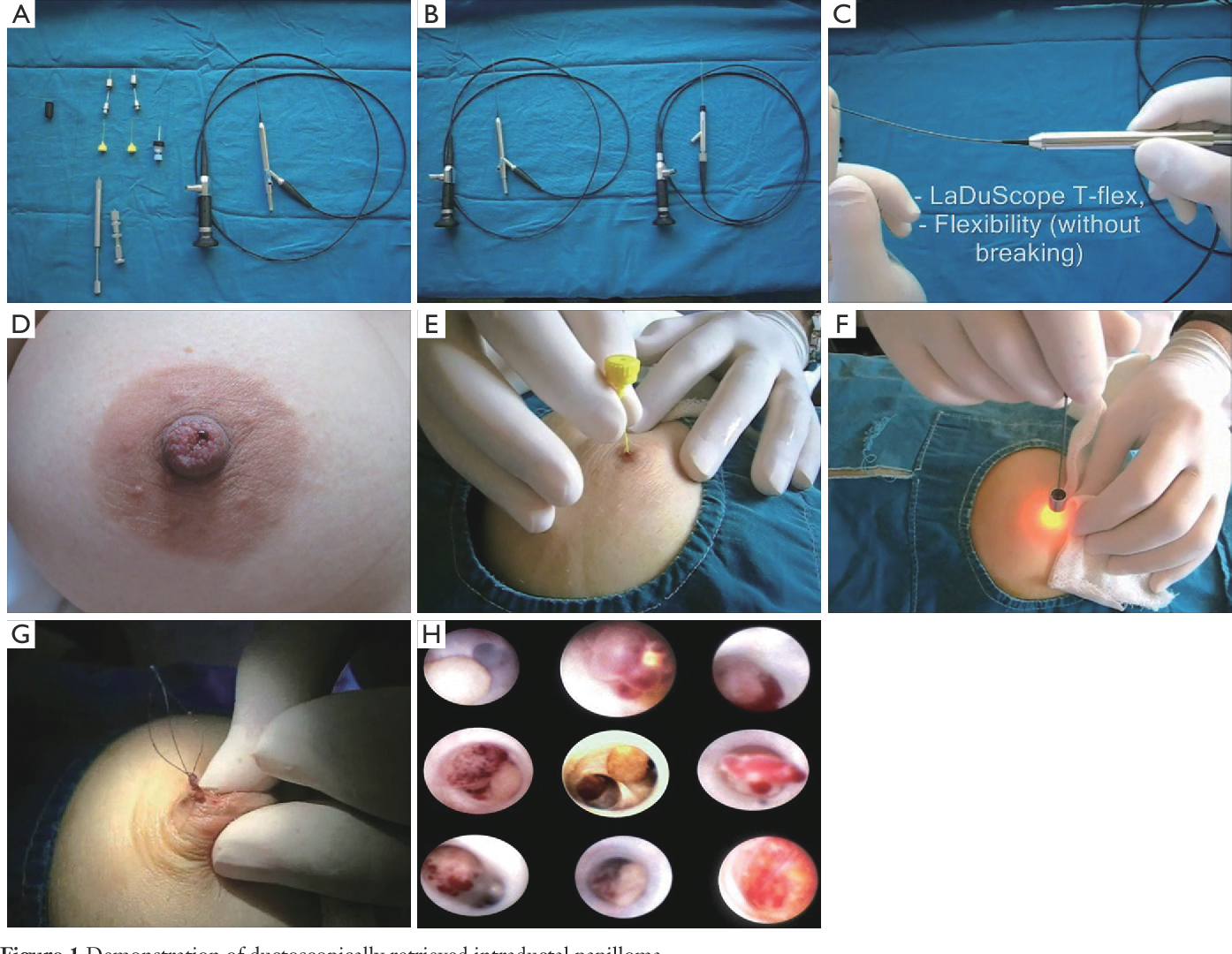 intraductal papilloma causes