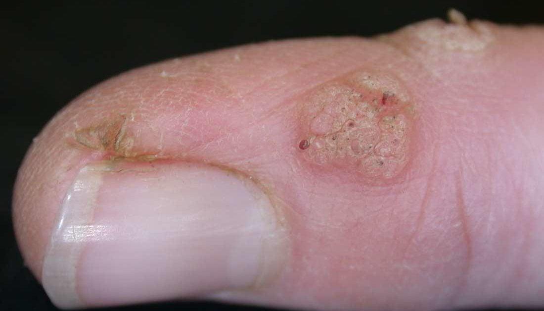warts on skin white