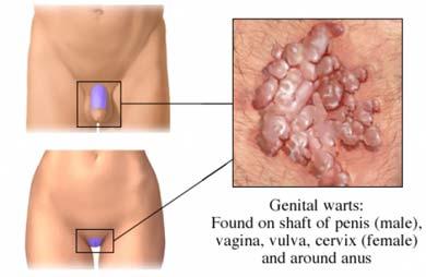 veruci genitale în zona inghinală la bărbați