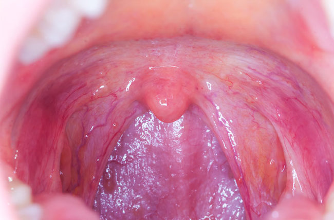 Throat cancer from hpv - Hpv throat cancer detection