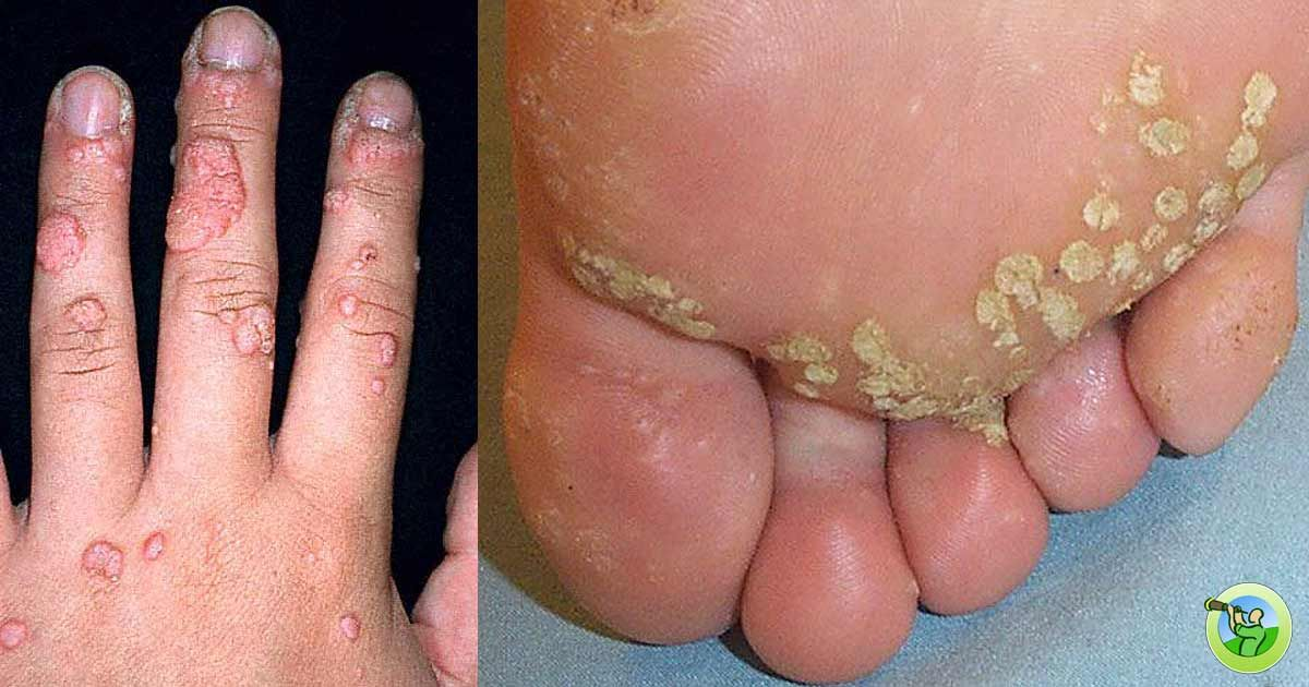 hpv in feet