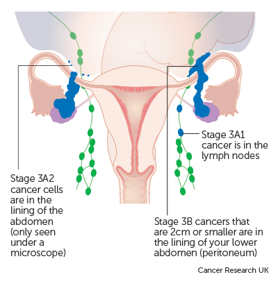 peritoneal cancer with ovarian)
