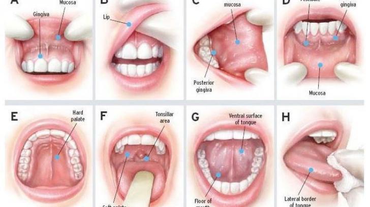 cancer malign simptome)