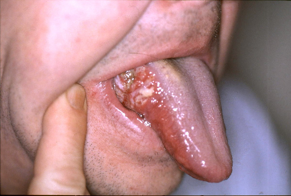 Hpv virus and throat. Throat Cancer and the Human Papilloma Virus virus del papiloma y cancer