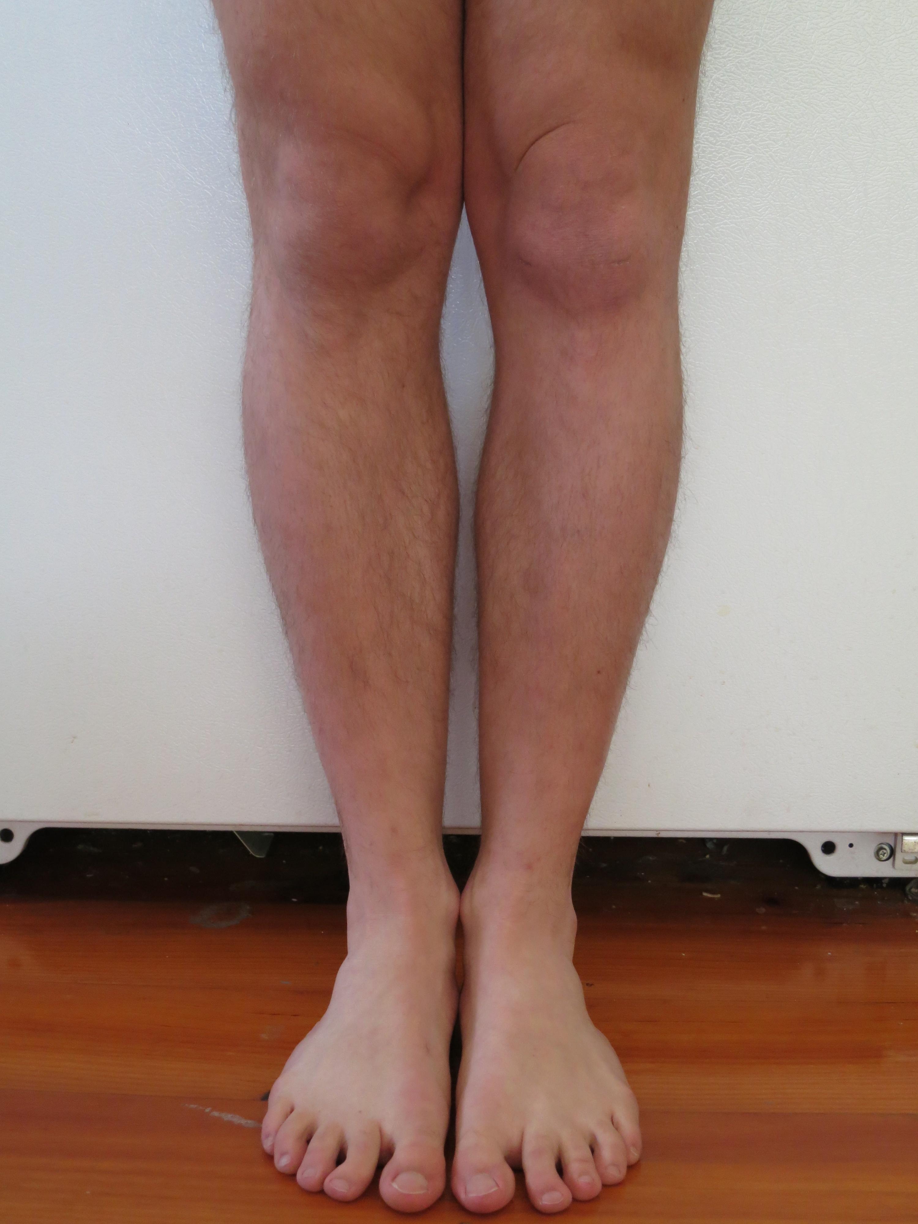 sarcoma cancer knee