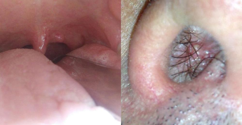 papilloma a cellule squamose palato)