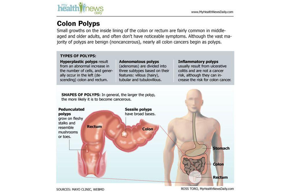 cancer colon cause
