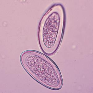 enterobius vermicularis who)
