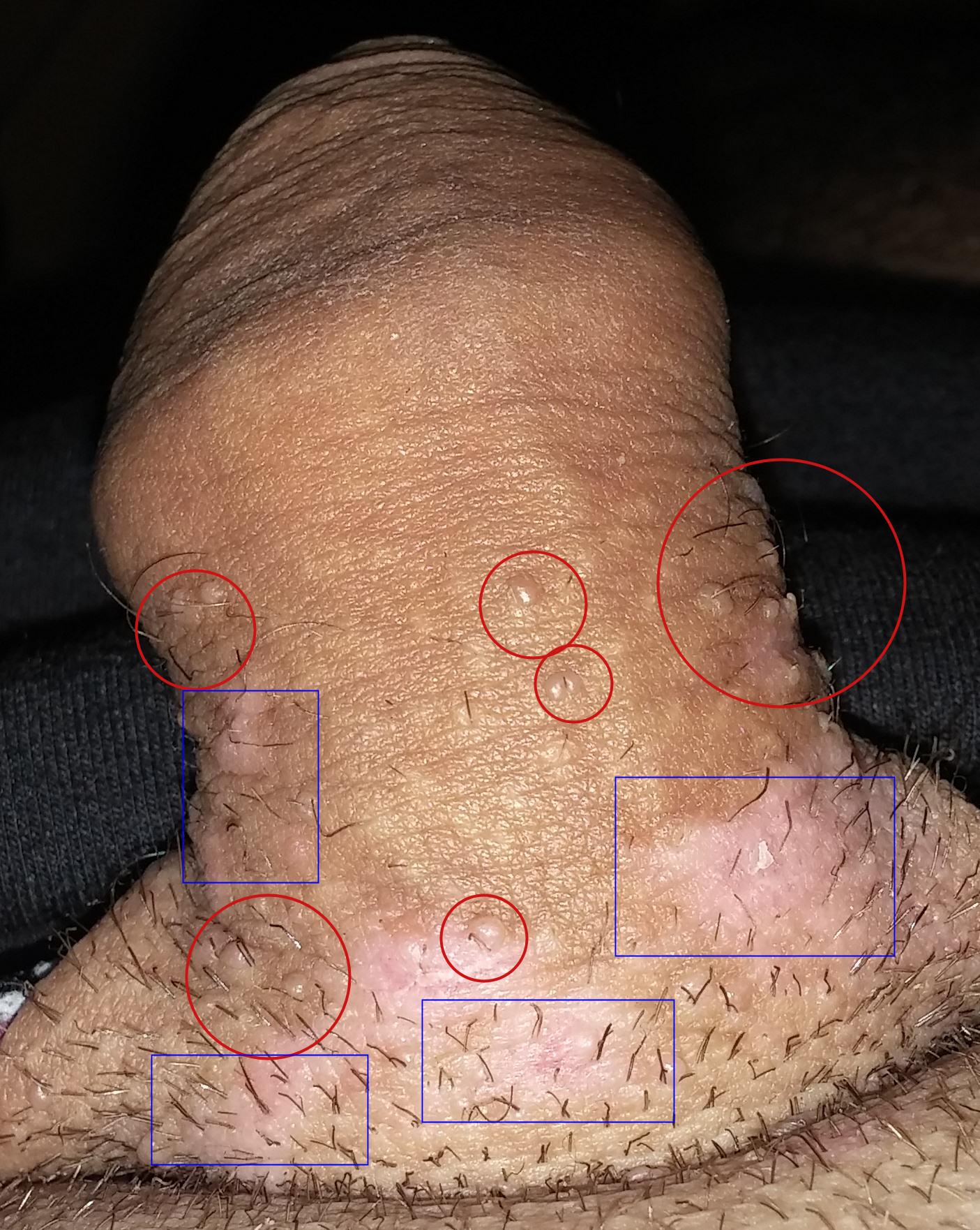 papillomavirus homme diagnostic
