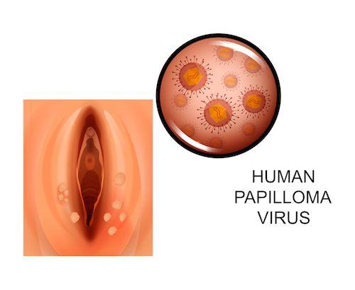 hpv virus muzi priznaky