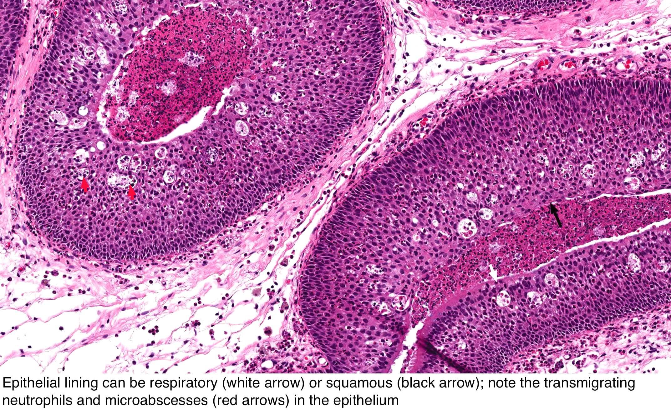 inverted papilloma vs nasal polyp