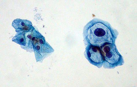 virusul papiloma cervical uman