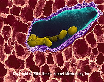 parazit lung