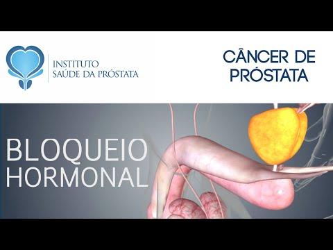 tratamentul paraziților tumorii