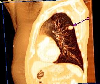 que es cancer bronquial condiloame la femei cum să le trateze