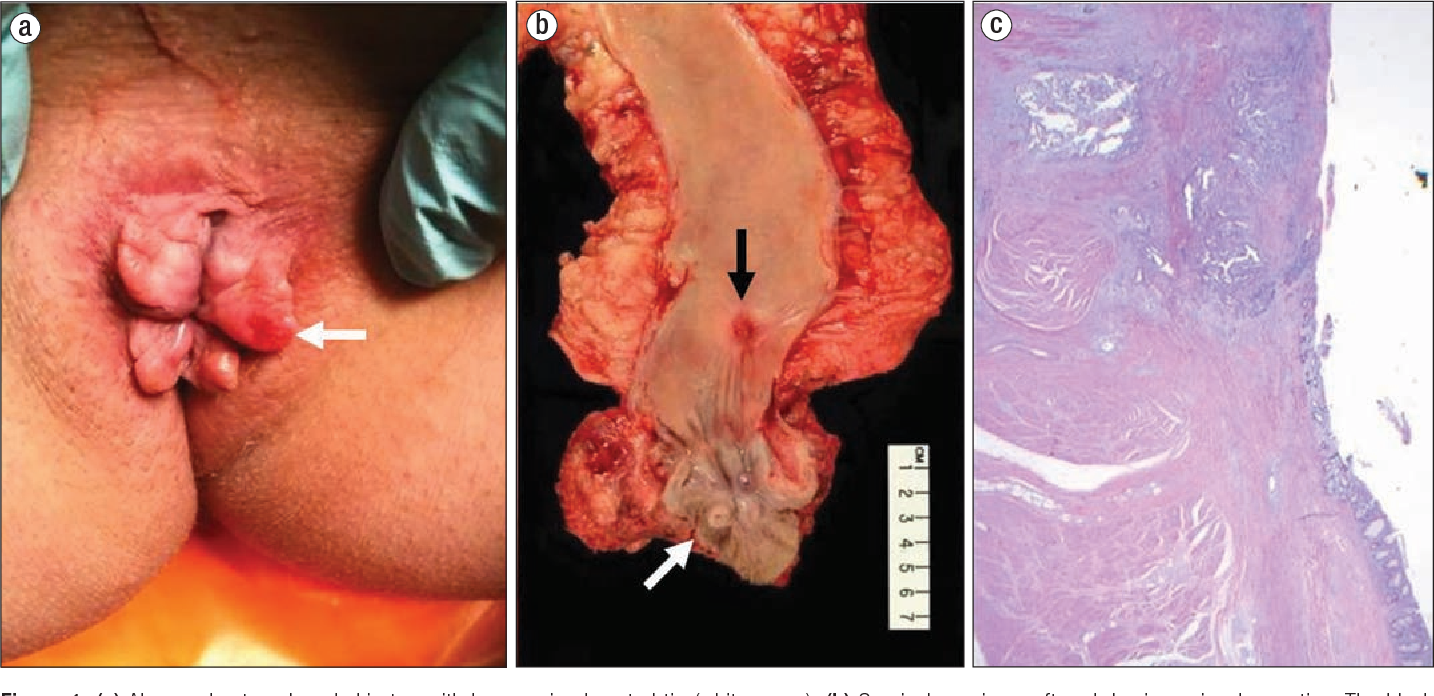rectal cancer on skin