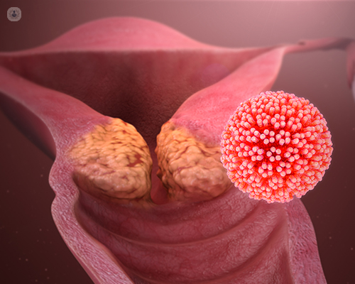 human papillomavirus italiano