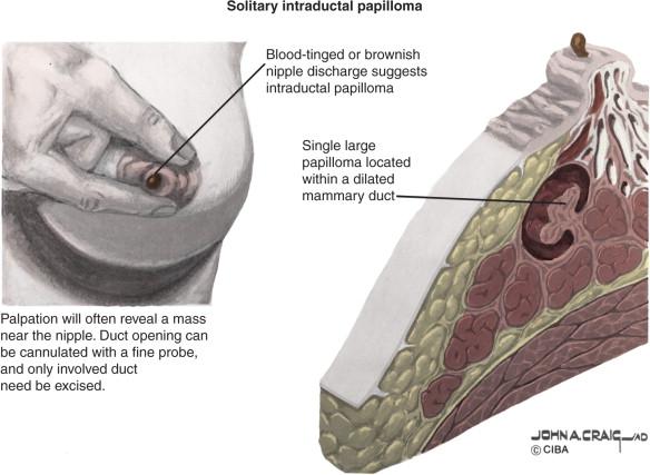 intraductal papilloma prognosis enterobius vermicularis histopathology