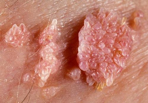 papilloma virus e bagni pubblici papillomatosis upper airway