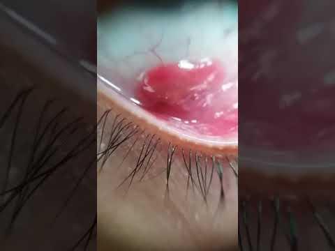 post intervento papilloma virus)