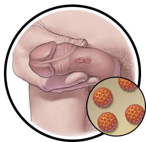 human papillomavirus in male)