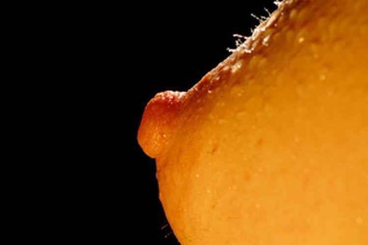 metoda chirurgicală genitală a condilomului verrugas genitales papiloma