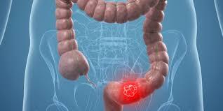 cancerul de colon amg