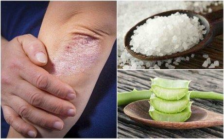Cele mai comune boli de piele pe care le poti lua vara