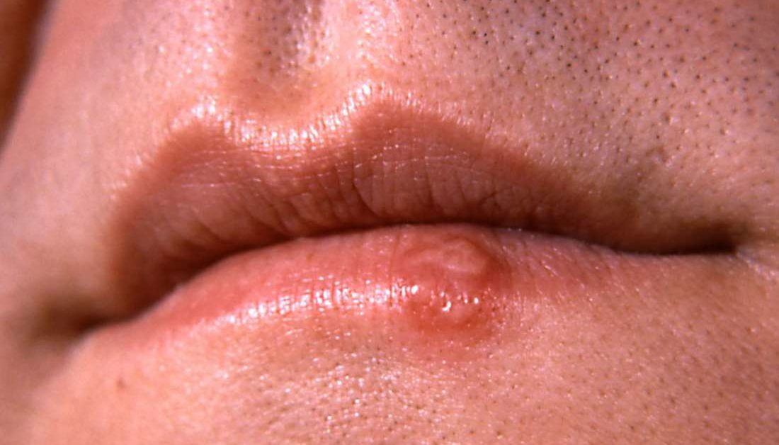 warts on tongue std