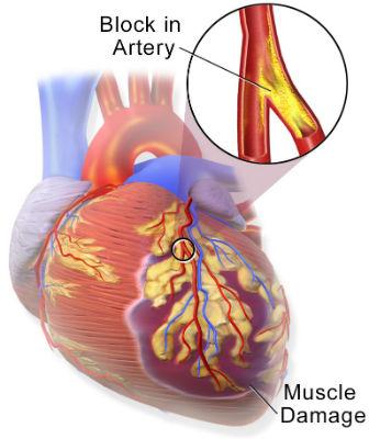 tratamentul bolilor de inimă)
