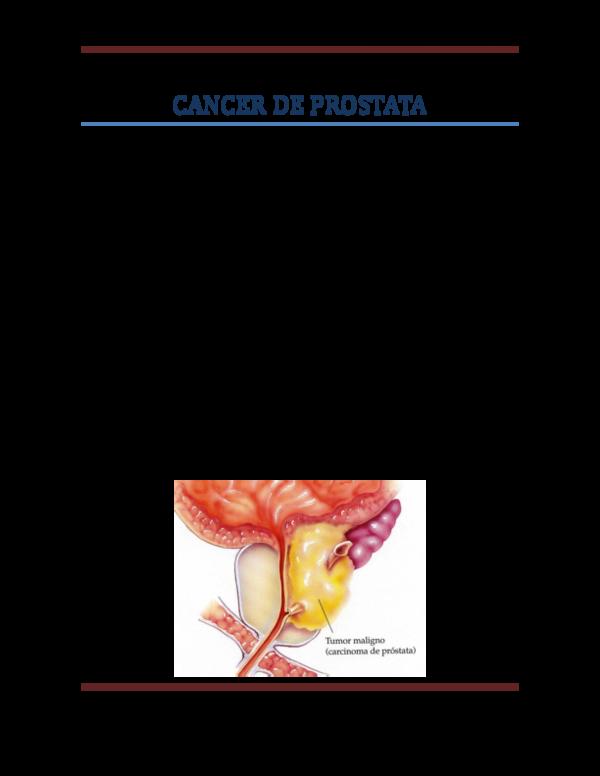 cancer de prostata consecuencias)