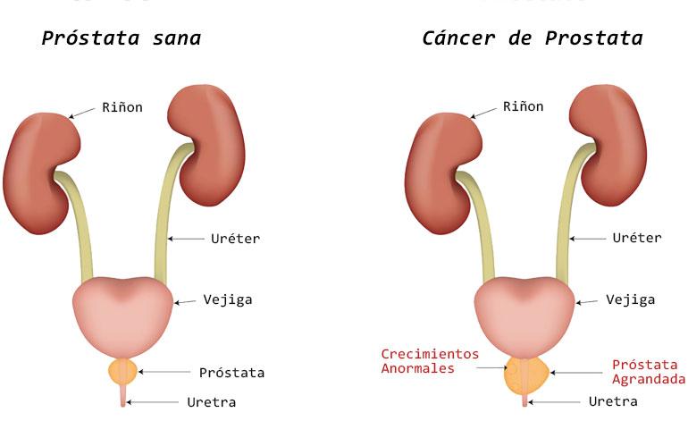 cancer de prostata operacion consecuencias viermi plate la oameni ca