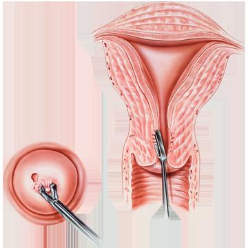 îndepărtarea condilomului colului uterin