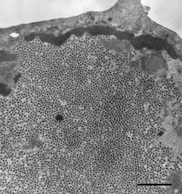 human papillomavirus ursachen