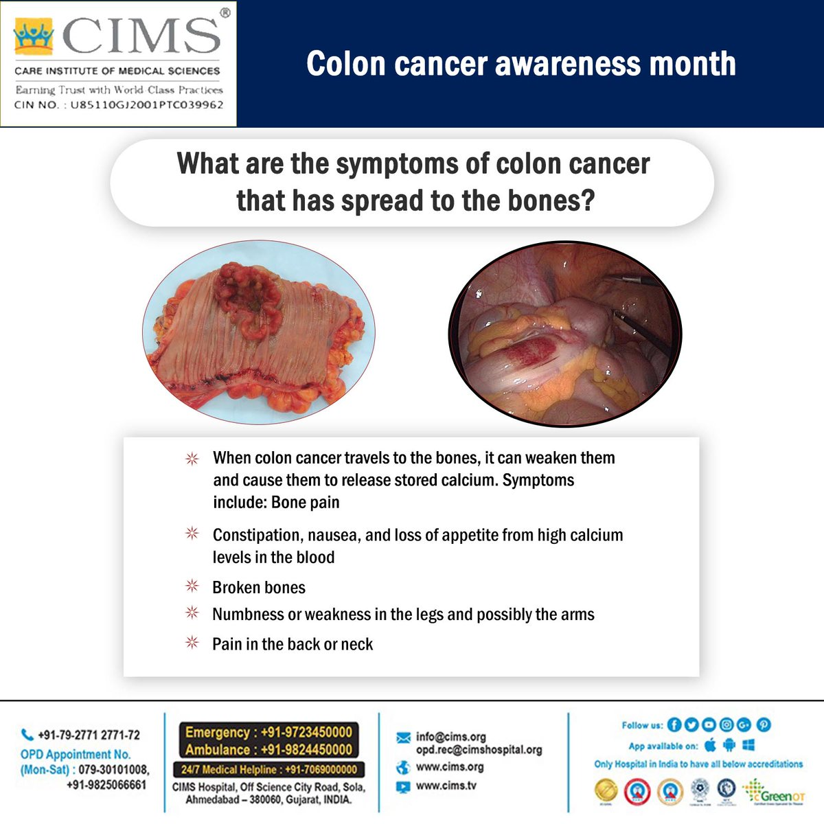 cancer colorectal constipation)