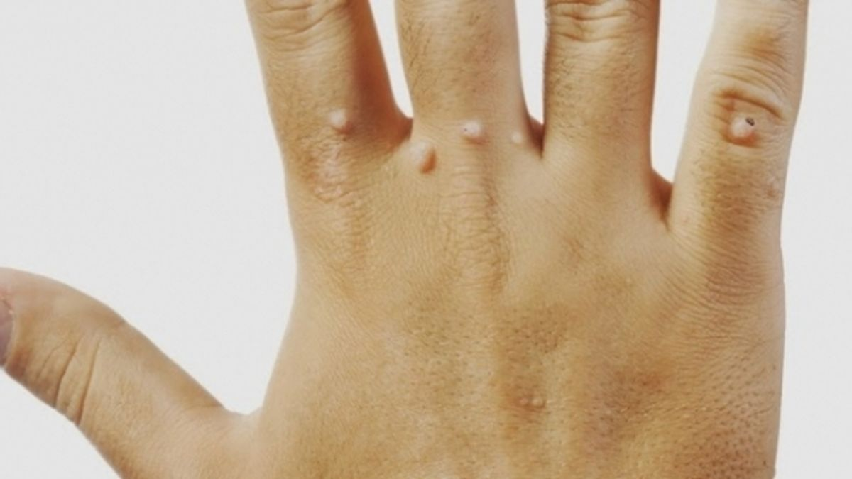 reflexoterapie toxine oxiuros antiparasitario