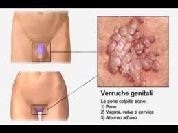 papilloma virus e cistite)